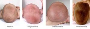 plagiocefalia casi